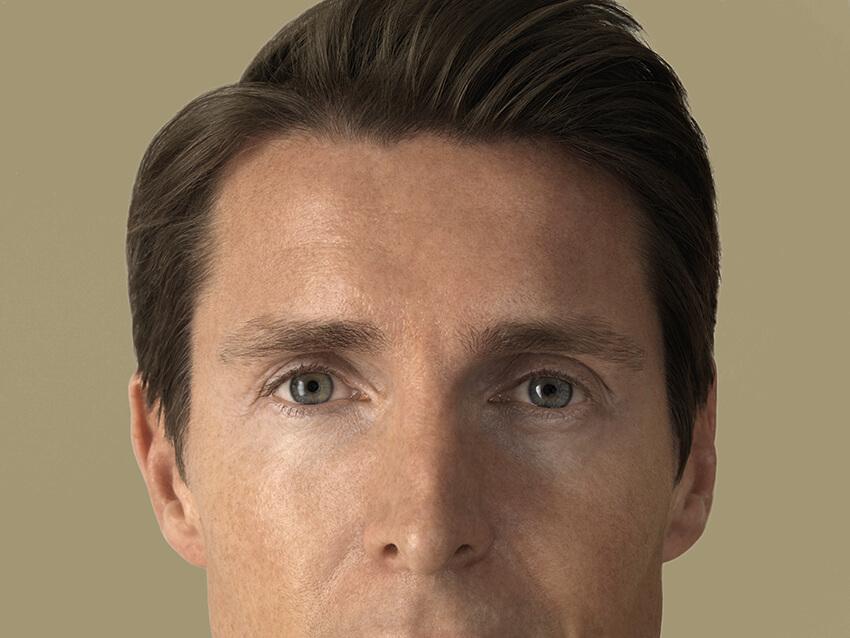 Eyelid Surgery Swiss